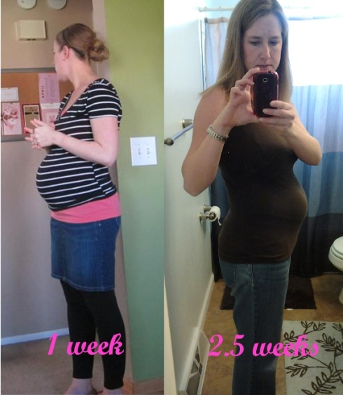 postpartum_comparison_1